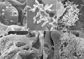 tuberculosis de la olea europaea